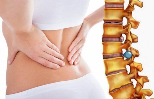 Bệnh thoát vị đĩa đệm là gì? Cách chữa và điều trị khỏi triệt để