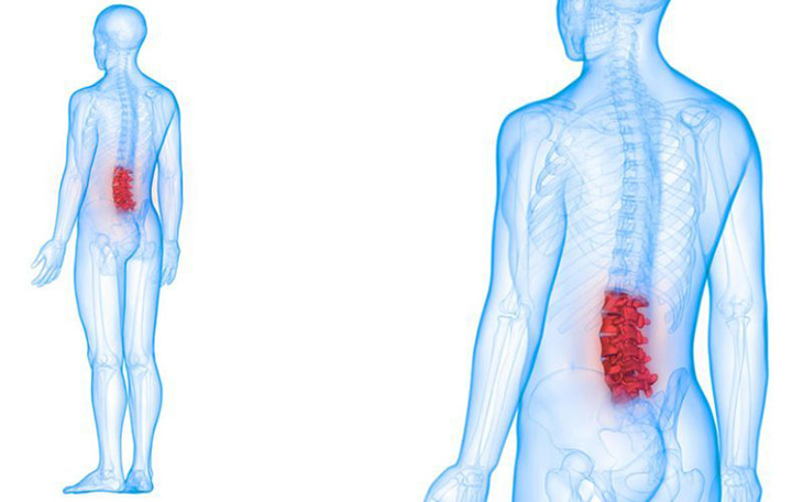 Thoái hóa cột sống lưng gây ra những triệu chứng vô cùng khó chịu