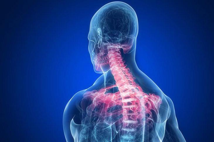 Nếu không điều trị kịp thời và đúng cách, thoái hóa đốt sống cổ có thể gây ra nhiều biến chứng nguy hiểm