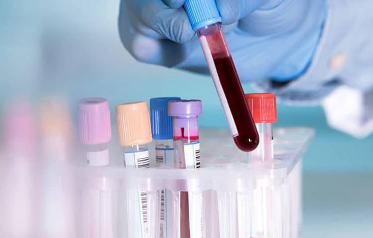Thực hiện các xét nghiệm để chẩn đoán viêm khớp dạng thấp