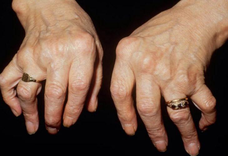 Viêm đa khớp dạng thấp gây đau nhức, ảnh hưởng đến vận động xương khớp