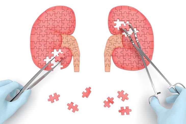 Sỏi tiết niệu gây ảnh hưởng tới quá trình bài tiết của thận, gây ra nhiều cơn đau buốt, ảnh hưởng xấu tới sức khoẻ