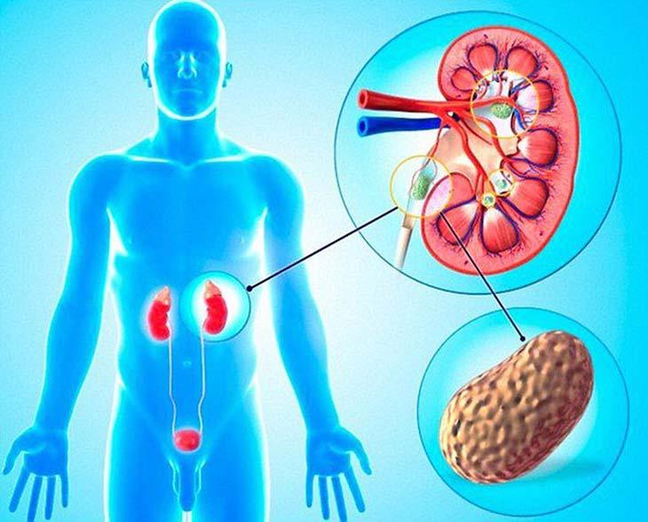 Bệnh lý đường tiết niệu này nếu không điều trị kịp thời sẽ gây ra nhiều biến chứng nguy hiểm