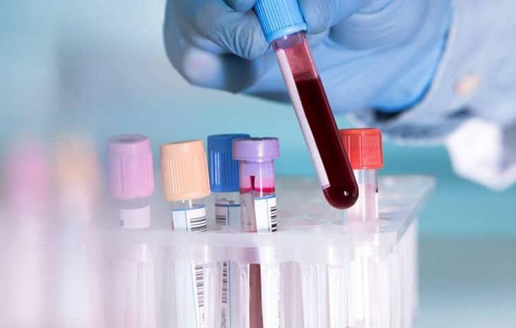 Xét nghiệm máu giúp chẩn đoán tình trạng kết tinh thể rắn của dịch mật