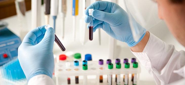 Xét nghiệm một số chất trong máu giúp bác sĩ biết được hoạt động của chức năng thận
