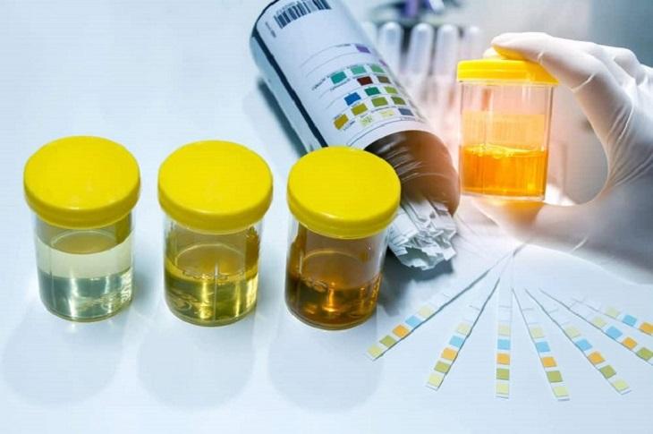 Xét nghiệm nước tiểu cho biết mức độ hoạt động của chức năng thận cũng như lượng protein có trong chất thải của thận