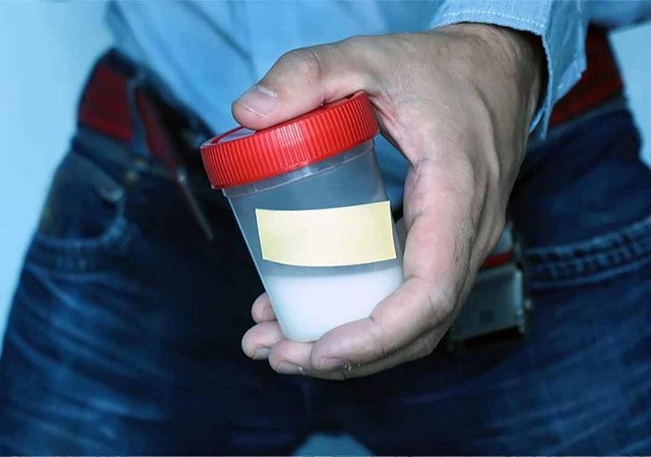 Tinh trùng loãng thường không có độ sệt mà trong như nước