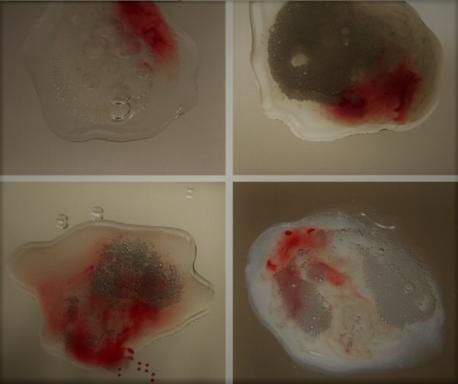 Tinh trùng màu nâu: Nam giới không nên xem thường