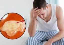 Tinh trùng vón cục như thạch và cách chữa hiệu quả
