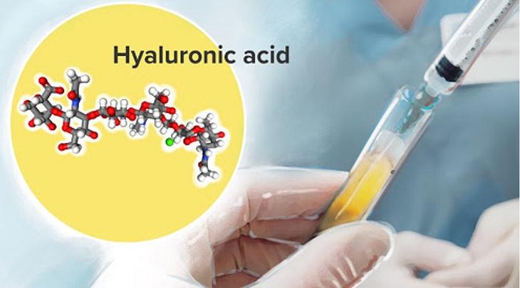 Axit hyaluronic giống như chất nhờn bôi trơn khớp có trong cơ thể, được dùng cho cả trường hợp bị viêm
