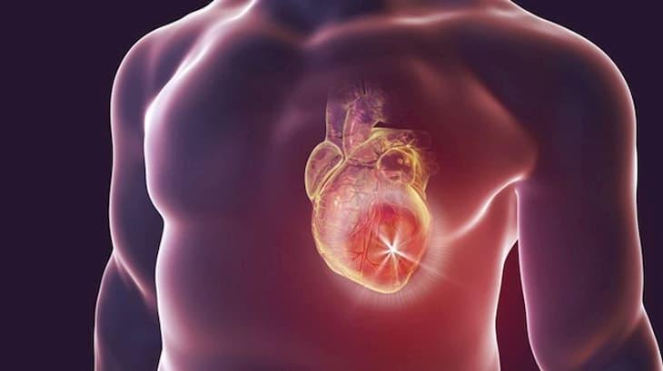 Suy tim sung huyết là biến chứng nguy hiểm nhất của viêm cầu thận