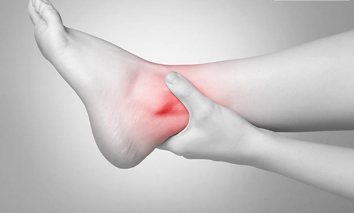 Bệnh viêm khớp mắt cá chân gây đau nhức khó chịu