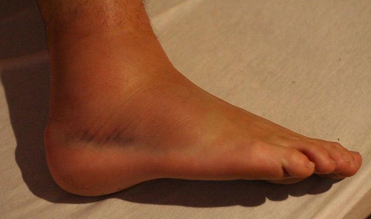 Mắt cá chân bị sưng đau là triệu chứng điển hình của bệnh