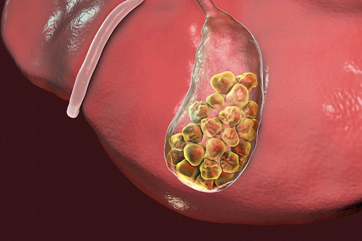 Các lưu ý khi chữa sỏi mật bằng quả dứa