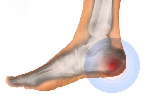 đau khớp gót chân