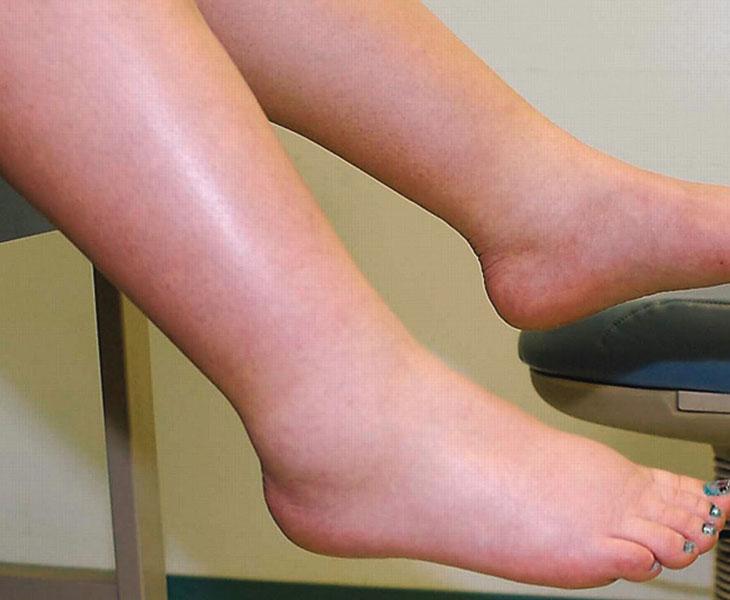 Phù là triệu chứng khá phổ biến với các bệnh nhân mắc hội chứng thận hư