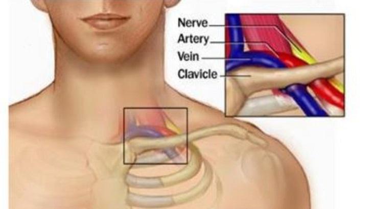 Khớp ức đòn là khớp nối giữa xương ức và xương đòn, hay còn gọi là đầu xương quai xanh