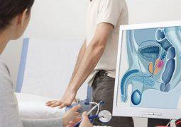 Phác đồ điều trị viêm tiền liệt tuyến cần thực hiện càng sớm càng tốt