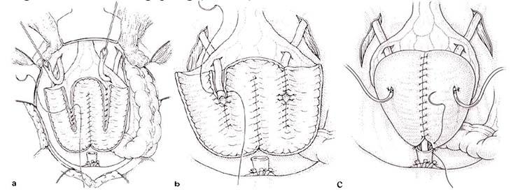 Chỉ áp dụng phẫu thuật khi bệnh nhân không phản ứng với thuốc hoặc các thủ thuật khác
