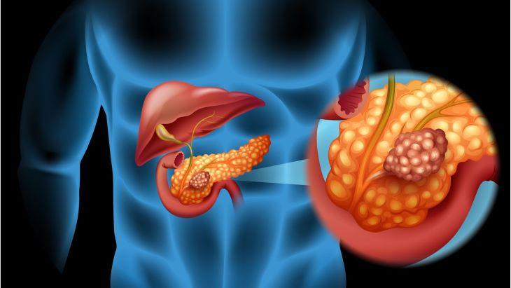 Để bệnh kéo dài có thể dẫn đến viêm tụy cấp