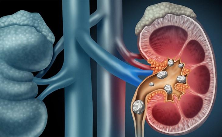 Có nhiều hình thức để chẩn đoán bệnh sỏi thận 6mm
