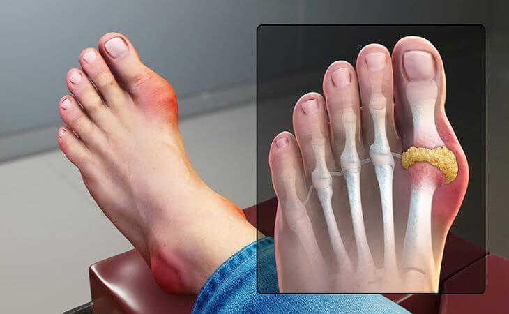 Bệnh gout có thể gây sưng đau ngón chân do axit uric tích tụ trong khớp