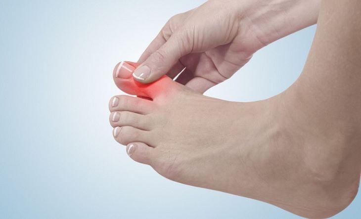 Nguyên nhân gây sưng và đau khớp ngón cái phần lớn là do bệnh xương khớp