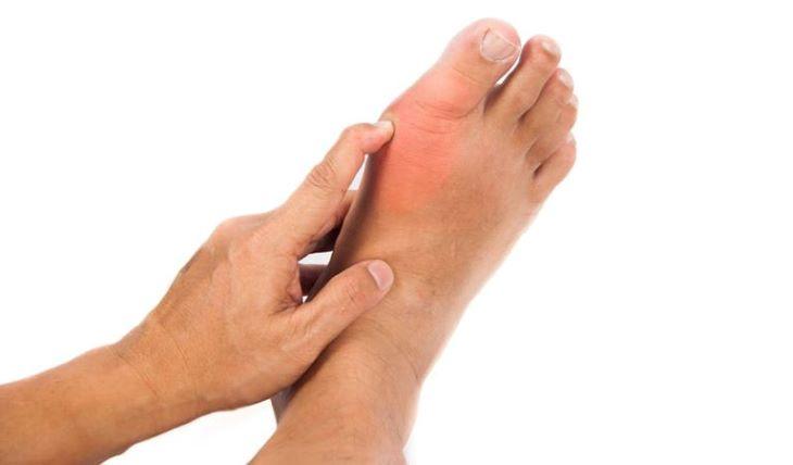 Nhiều người khi bị sưng, đau khớp ngón chân cái vẫn chủ quan khiến tình trạng ngày càng nghiêm trọng