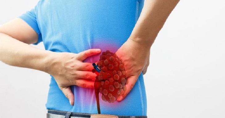 Hội chứng thận hư có chữa khỏi được không?