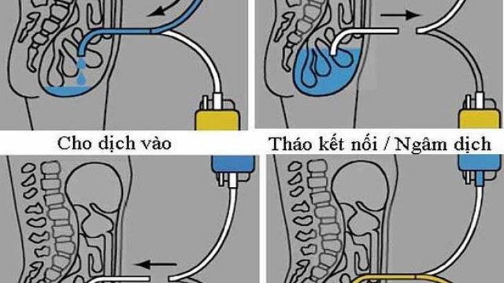Người bệnh có thể được điều trị bằng phương pháp lọc màng bụng
