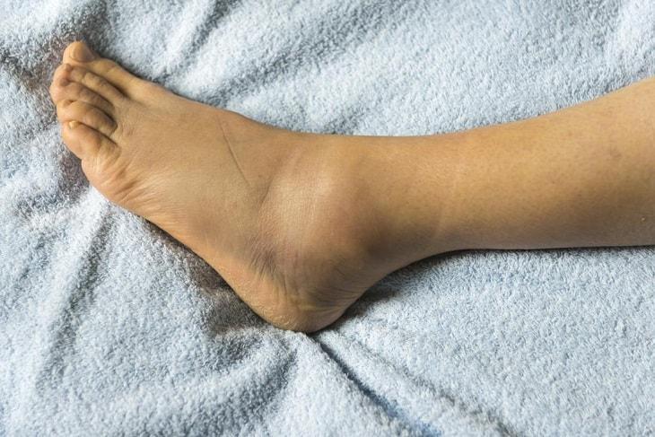 Người bệnh có thể xuất hiện tình trạng phù