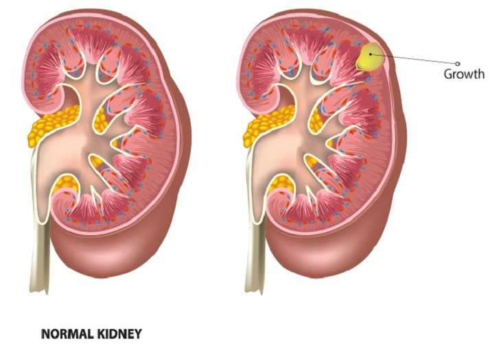 Hội chứng thận hư nhiễm mỡ là một rối loạn ở thận