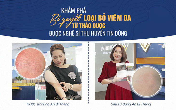 Hình ảnh TRƯỚC - SAU điều trị viêm da mãn tính của diễn viên Thu Huyền với bài thuốc An Bì Thang