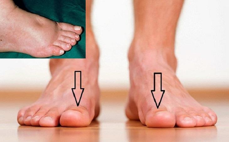 Ứ đọng dịch ở tay chân do suy thận gây ra