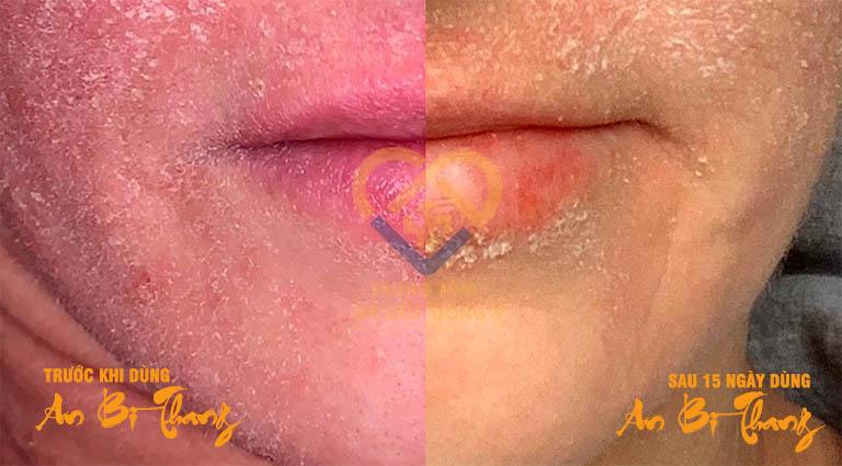Hình ảnh trước và trong khi điều trị chàm của chị Minh Loan