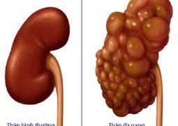 U nang thận là khối u lành tính hình thành trong thận