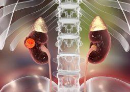 U thận là những khối u hình thành tại các bộ phận của thận