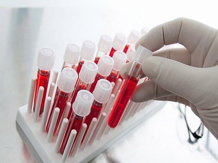 Xét nghiệm là cách phát hiện ra bệnh ung thư tiền liệt tuyến chính xác