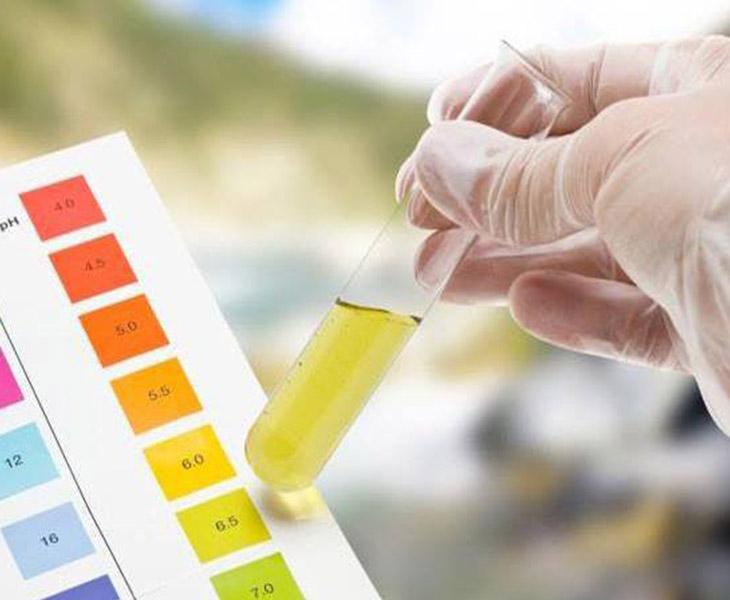 Protein niệu là một trong những dấu hiệu để xác định có mắc bệnh hay không