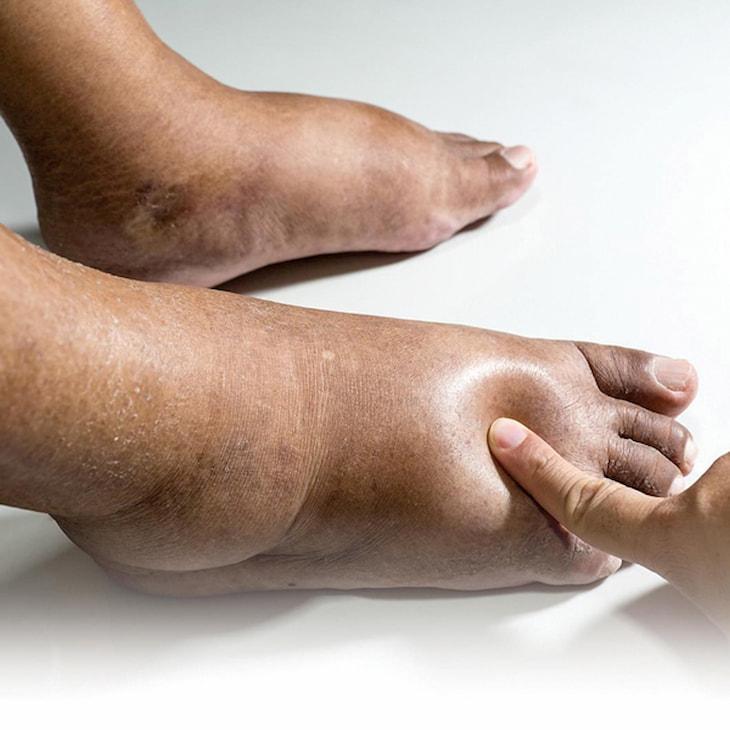 Protein niệu gây phù ở bàn chân