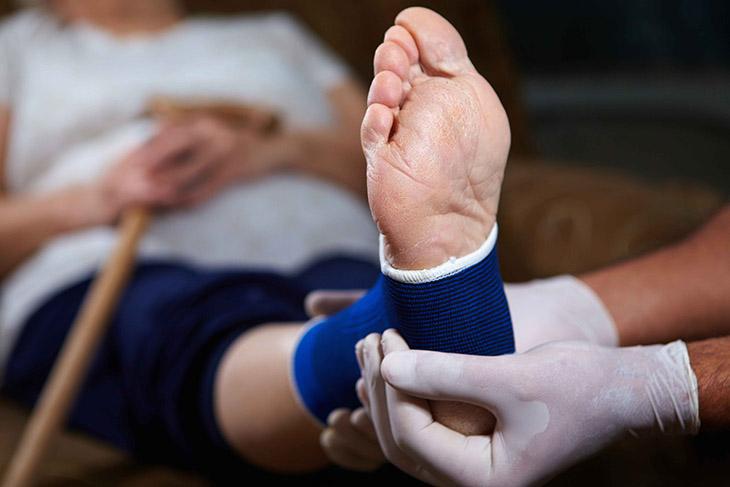Các chấn thương có thể làm bàn chân bị viêm