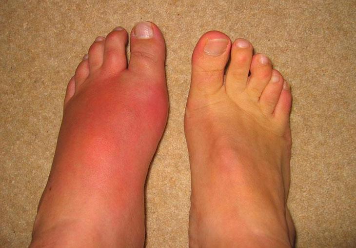 Bàn chân bị sưng đỏ là một trong những dấu hiệu quả bệnh