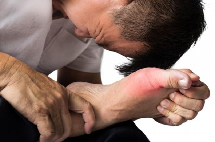 Người mắc bệnh gout cần cẩn trọng trước nguy cơ mắc viêm khớp cấp