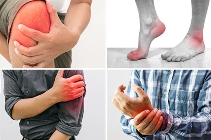 Hình ảnh bệnh viêm khớp