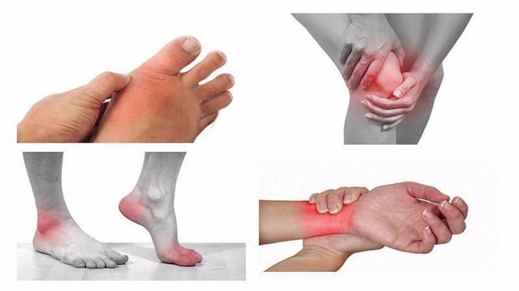Hình ảnh một số khớp gối, tay, chân bị sưng tấy do viêm