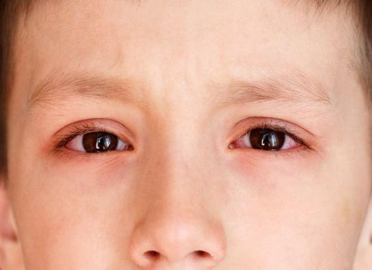 Để lâu ngày, bệnh có thể gây ra các biến chứng nguy hiểm trên mắt cho trẻ