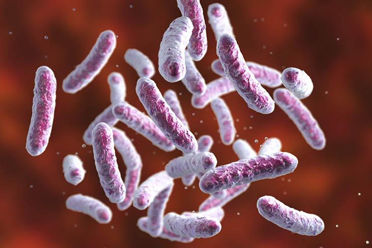 Vi khuẩn Salmonella đường tiêu hóa gây nhiễm trùng, viêm khớp