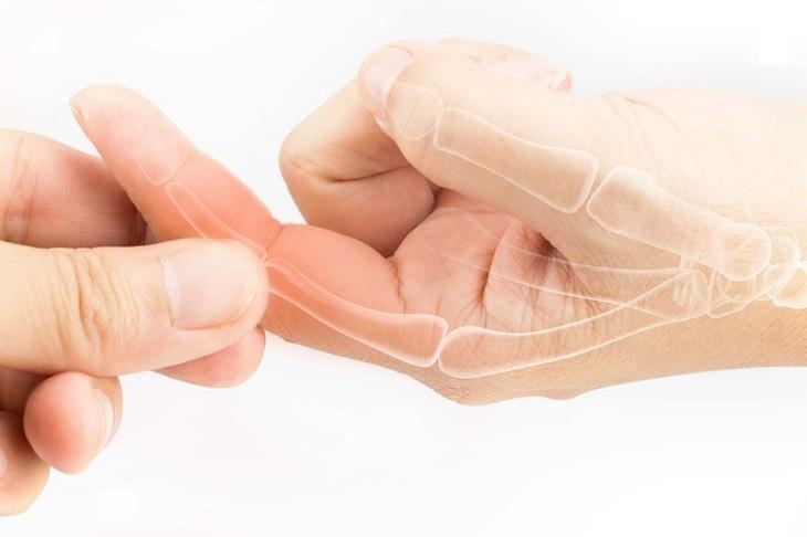 Viêm khớp tay là bệnh gì, có nghiêm trọng không?