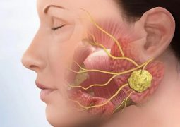 Bệnh viêm khớp thái dương hàm: Nguyên nhân và cách chữa