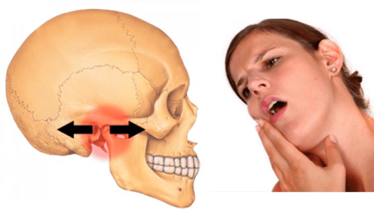Hình ảnh bị viêm khớp thái dương hàm
